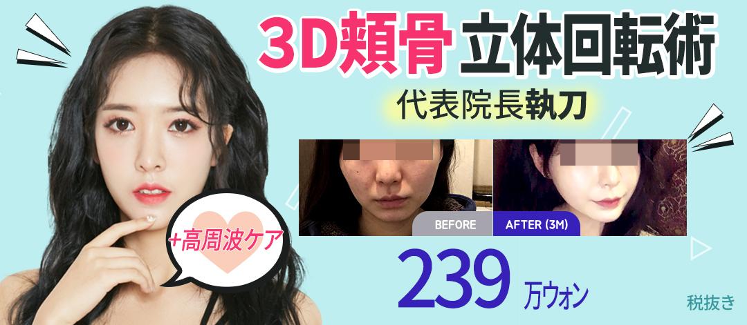 3D頬骨立体回転術