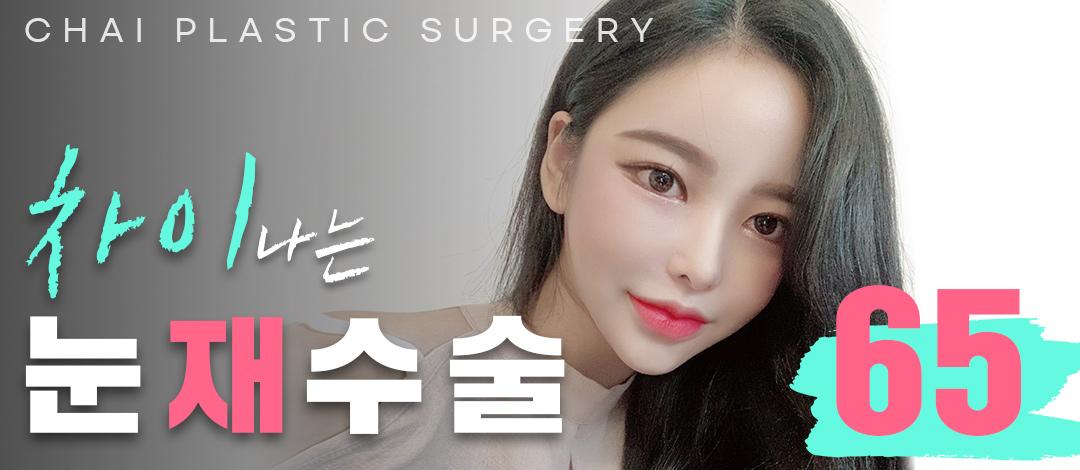 차이나게 예쁜 눈재수술