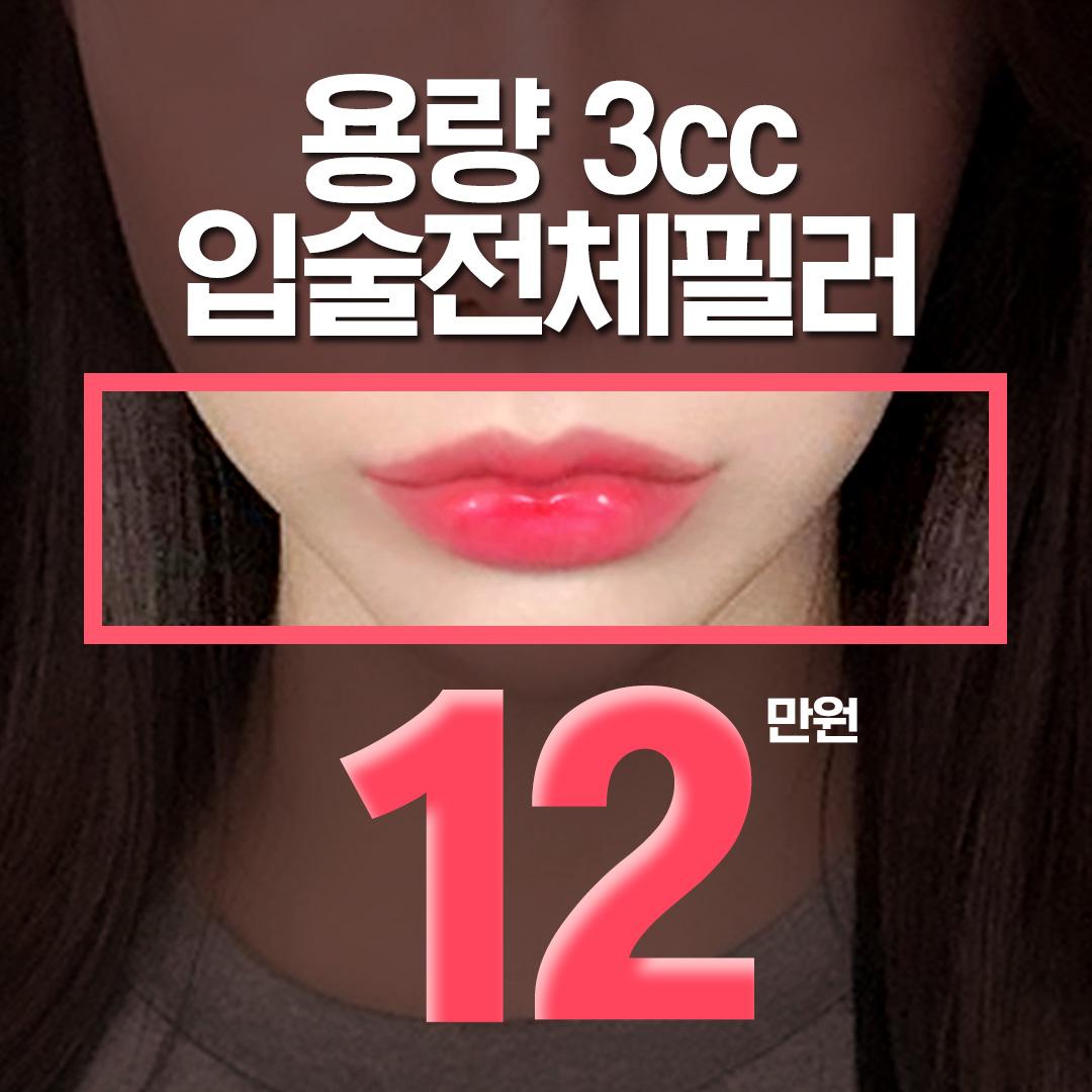 입술전체필러 3cc