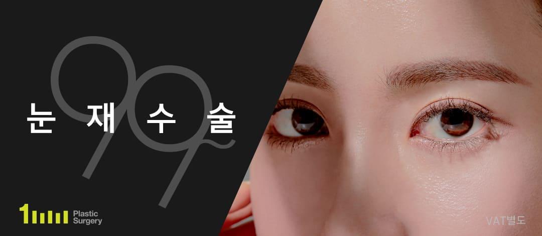일미리 눈재수술