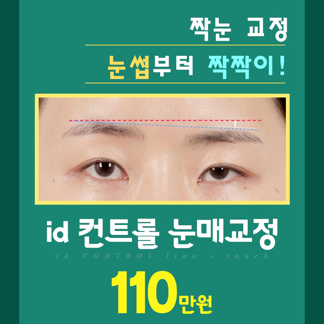 id 컨트롤 눈매교정